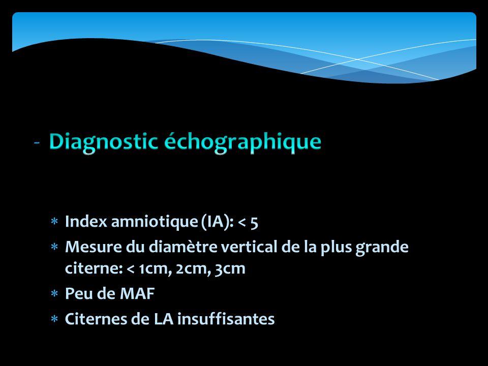 Diagnostic échographique