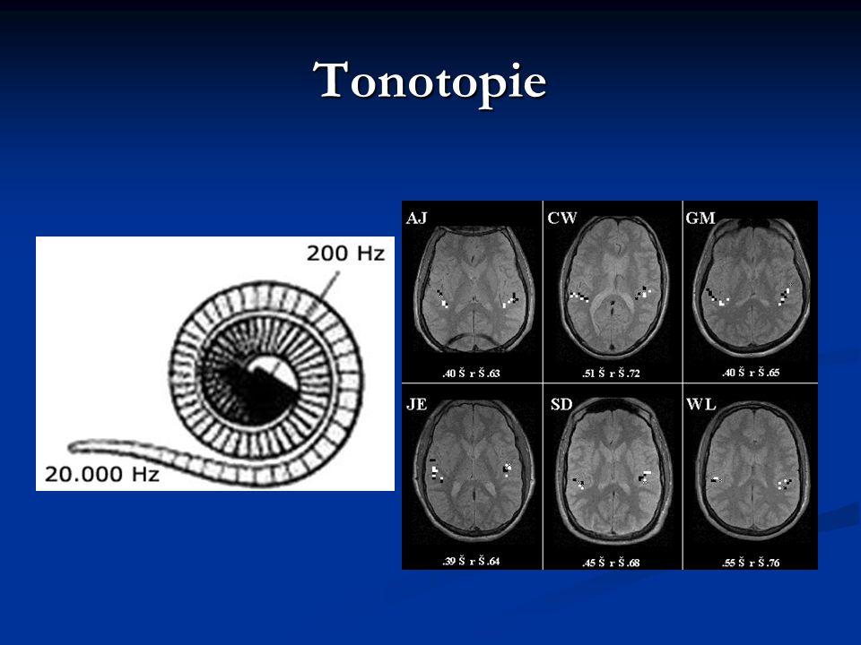 Tonotopie