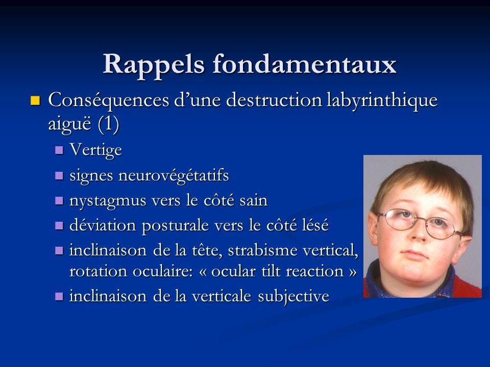 Rappels fondamentaux Conséquences d'une destruction labyrinthique aiguë (1) Vertige. signes neurovégétatifs.
