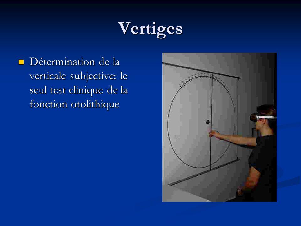 Vertiges Détermination de la verticale subjective: le seul test clinique de la fonction otolithique