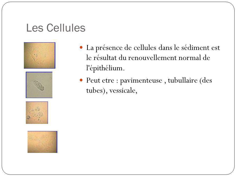 Les Cellules La présence de cellules dans le sédiment est le résultat du renouvellement normal de l épithélium.