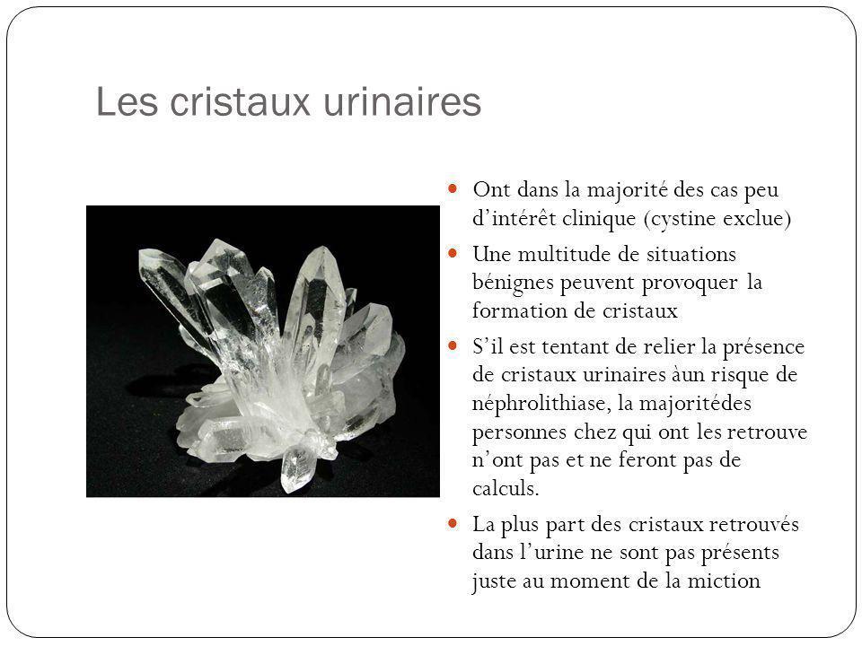 Les cristaux urinaires