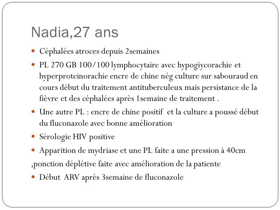 Nadia,27 ans Céphalées atroces depuis 2semaines