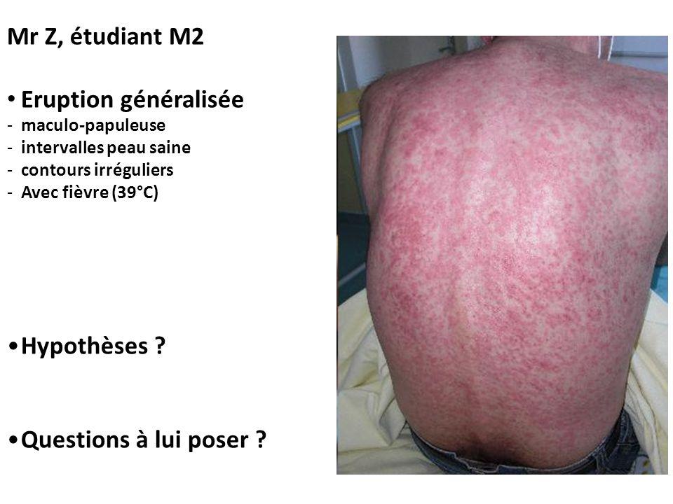 Mr Z, étudiant M2 Eruption généralisée Hypothèses