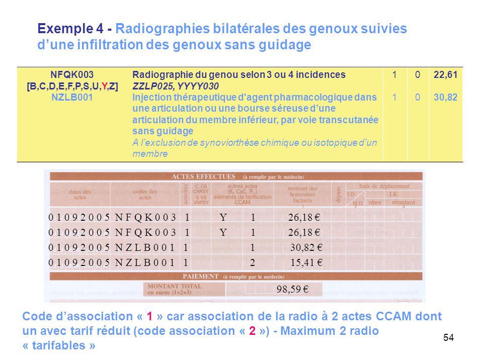Exemple 4 - Radiographies bilatérales des genoux suivies d'une infiltration des genoux sans guidage