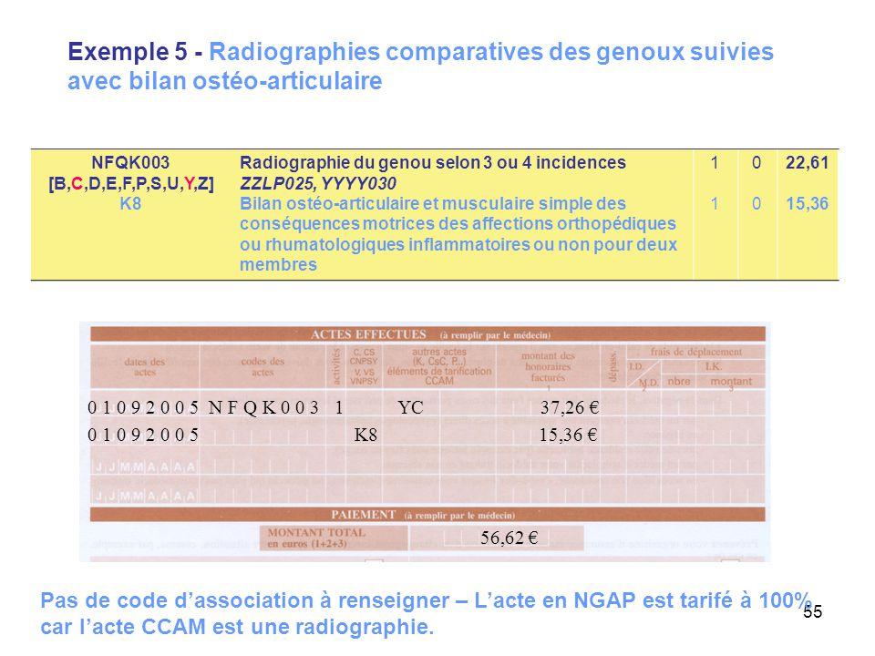 Exemple 5 - Radiographies comparatives des genoux suivies avec bilan ostéo-articulaire