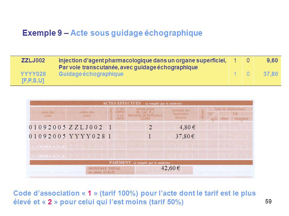 Exemple 9 – Acte sous guidage échographique