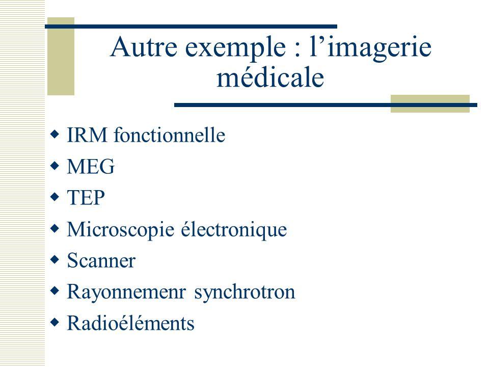 Autre exemple : l'imagerie médicale
