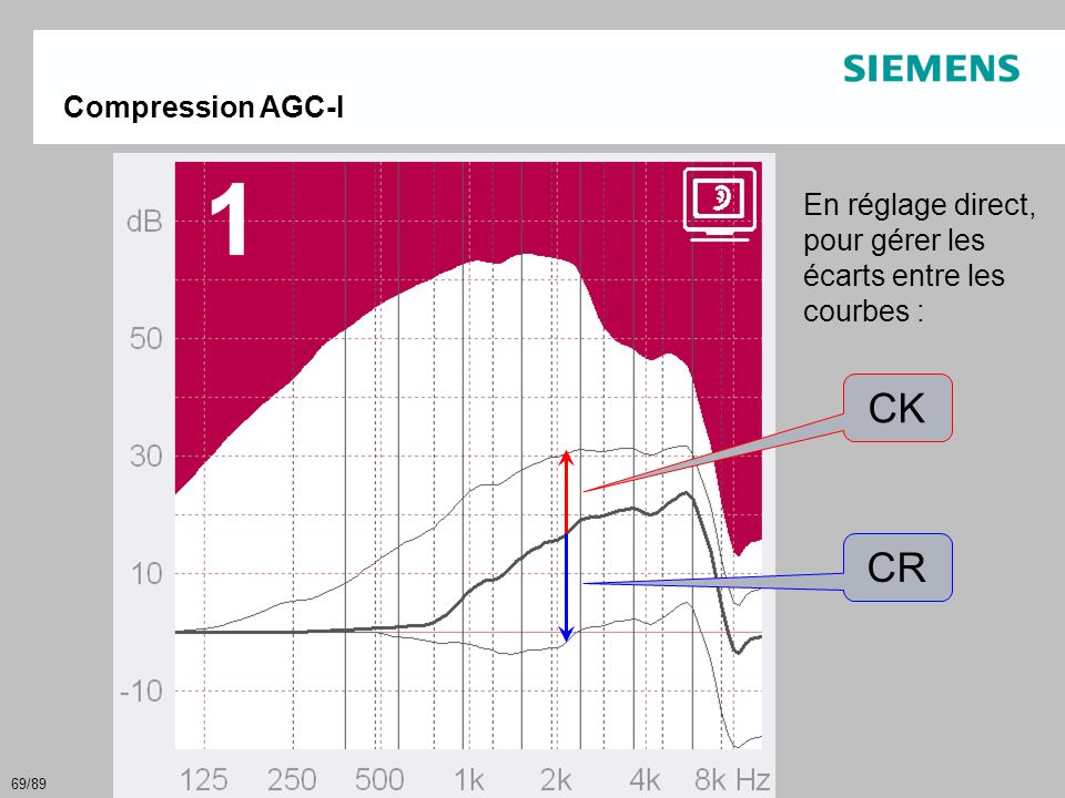 CK CR Compression AGC-I