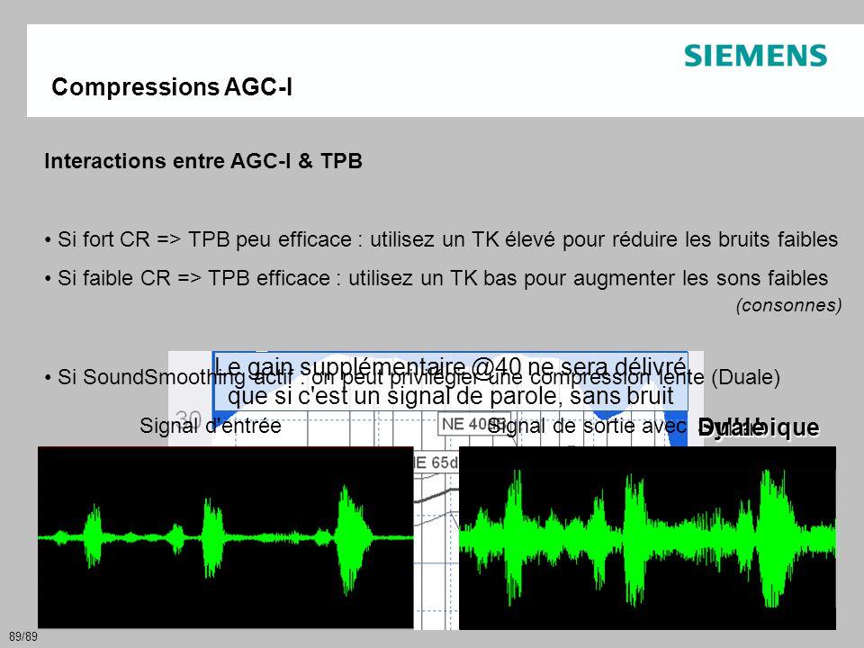 Compressions AGC-I Interactions entre AGC-I & TPB. Si fort CR => TPB peu efficace : utilisez un TK élevé pour réduire les bruits faibles.