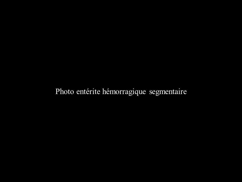 Photo entérite hémorragique segmentaire