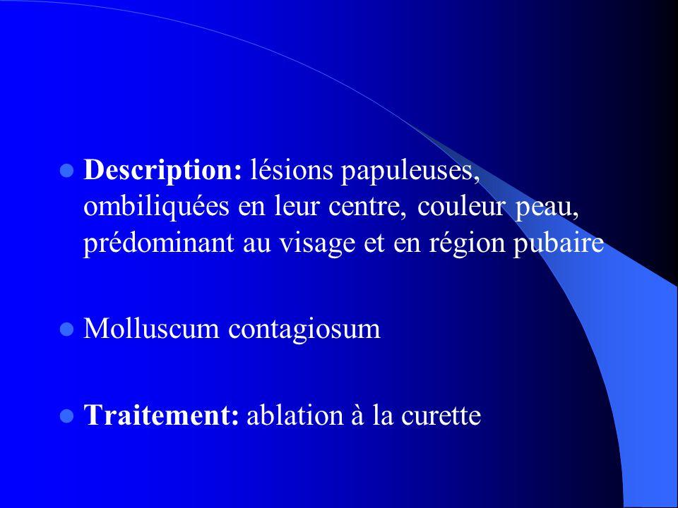 Description: lésions papuleuses, ombiliquées en leur centre, couleur peau, prédominant au visage et en région pubaire