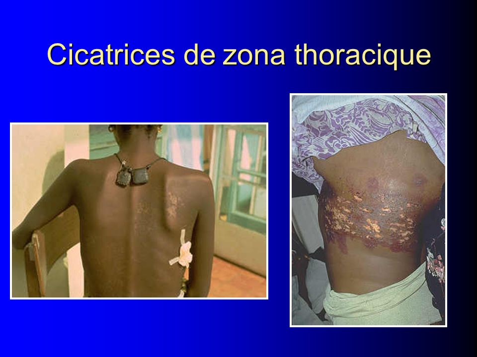 Cicatrices de zona thoracique