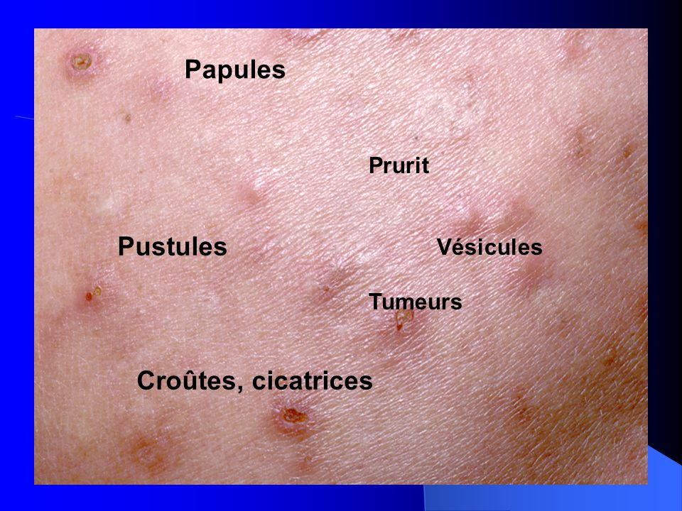 Molluscum Contagiosum Infection
