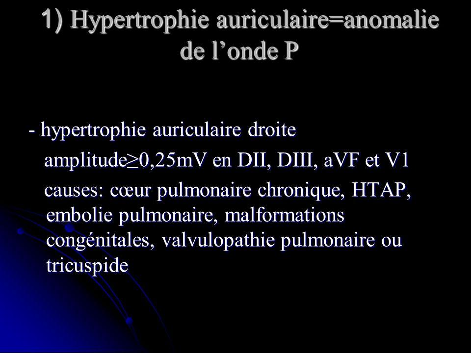 1) Hypertrophie auriculaire=anomalie de l'onde P