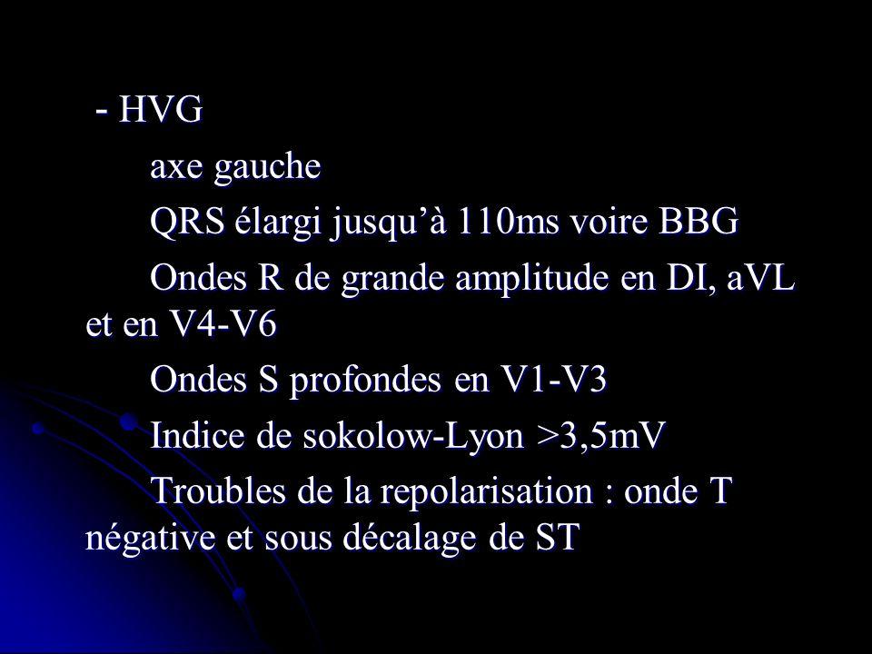 - HVG axe gauche. QRS élargi jusqu'à 110ms voire BBG. Ondes R de grande amplitude en DI, aVL et en V4-V6.