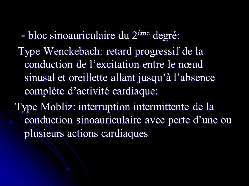 - bloc sinoauriculaire du 2ème degré: