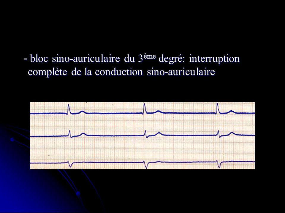- bloc sino-auriculaire du 3ème degré: interruption complète de la conduction sino-auriculaire