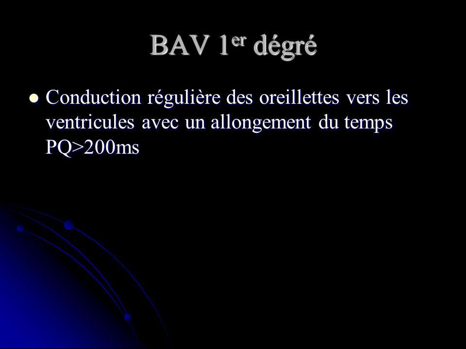 BAV 1er dégré Conduction régulière des oreillettes vers les ventricules avec un allongement du temps PQ>200ms.