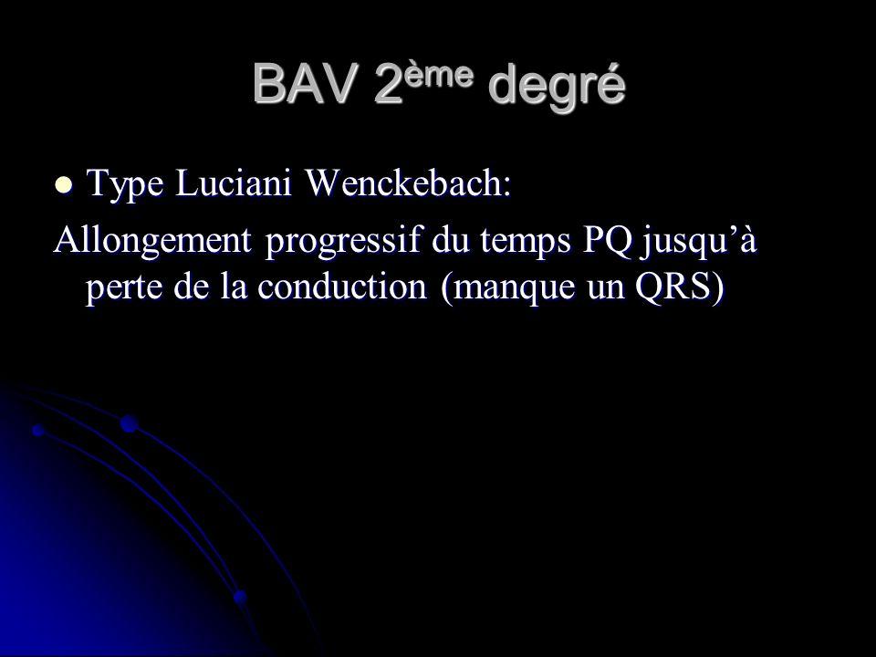 BAV 2ème degré Type Luciani Wenckebach: