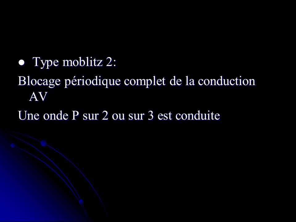Type moblitz 2: Blocage périodique complet de la conduction AV.