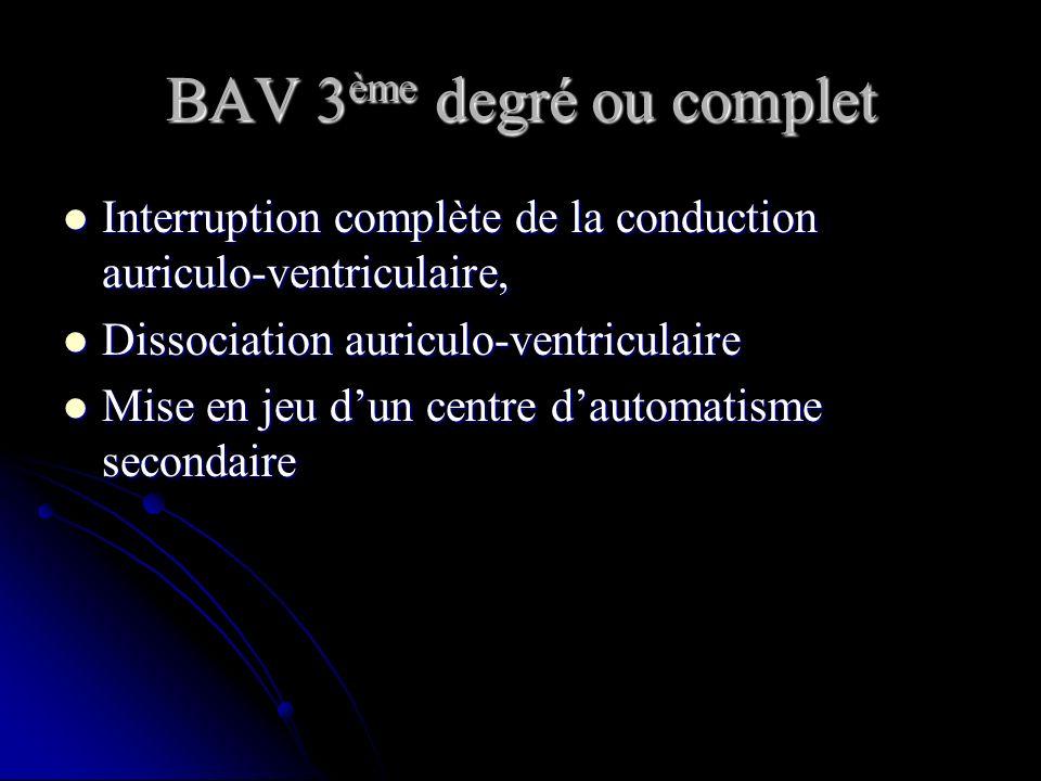 BAV 3ème degré ou complet