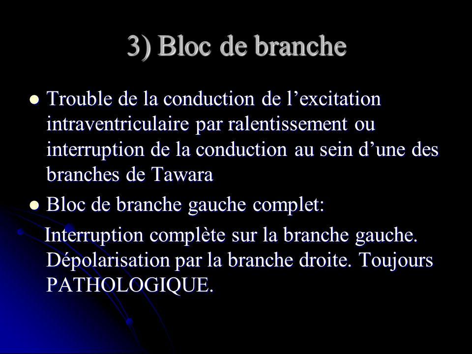 3) Bloc de branche