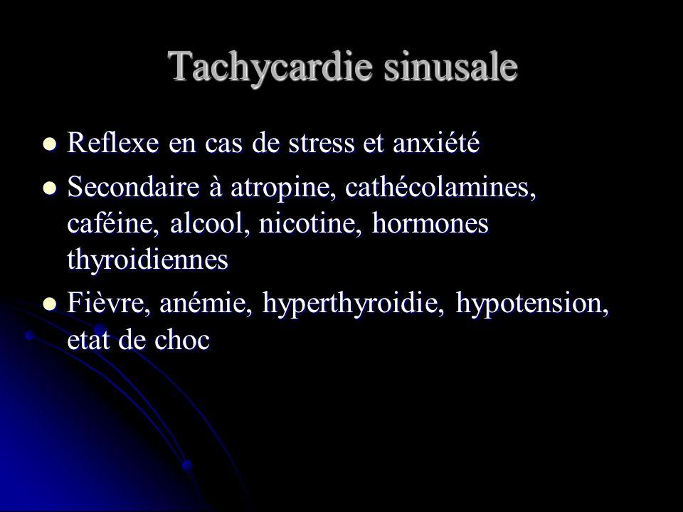 Tachycardie sinusale Reflexe en cas de stress et anxiété
