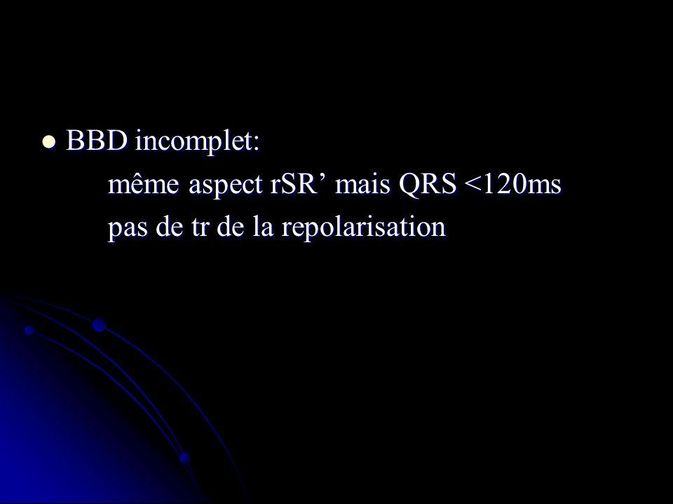 BBD incomplet: même aspect rSR' mais QRS <120ms pas de tr de la repolarisation