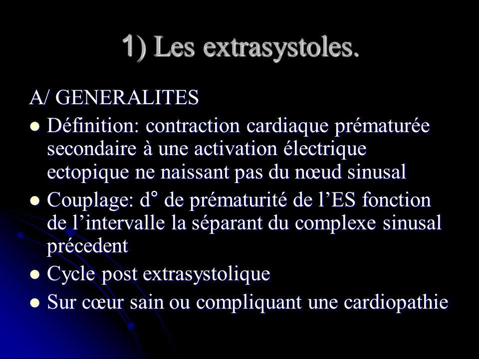 1) Les extrasystoles. A/ GENERALITES