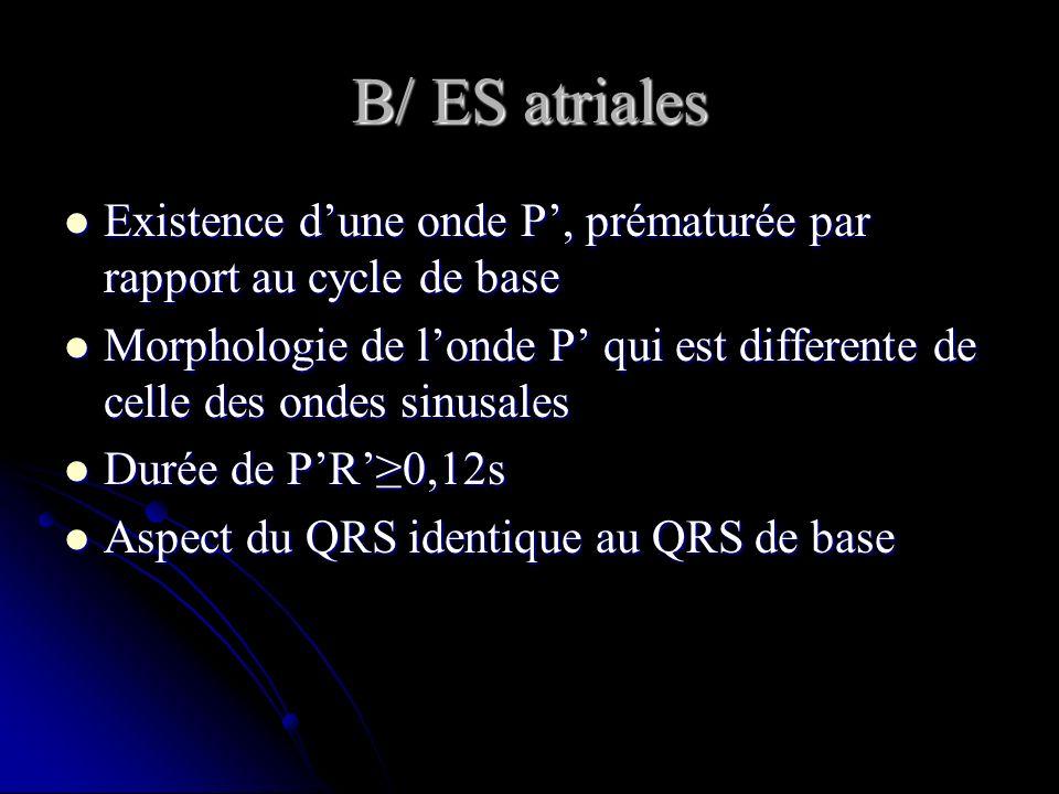 B/ ES atriales Existence d'une onde P', prématurée par rapport au cycle de base.