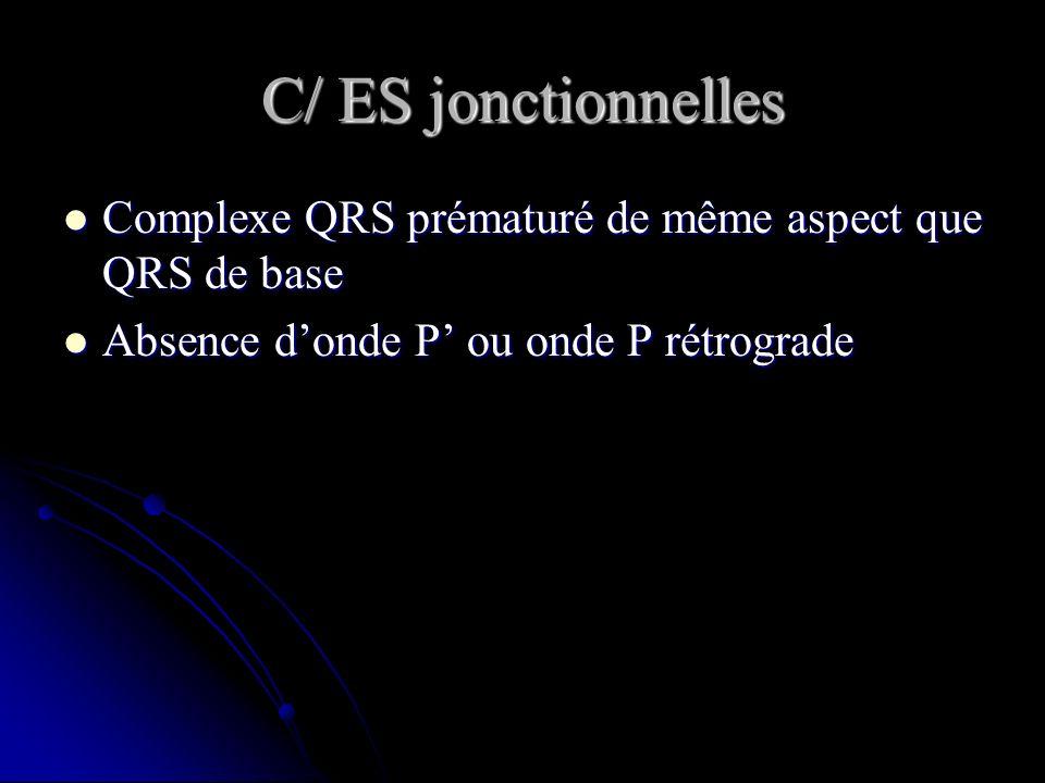 C/ ES jonctionnelles Complexe QRS prématuré de même aspect que QRS de base.