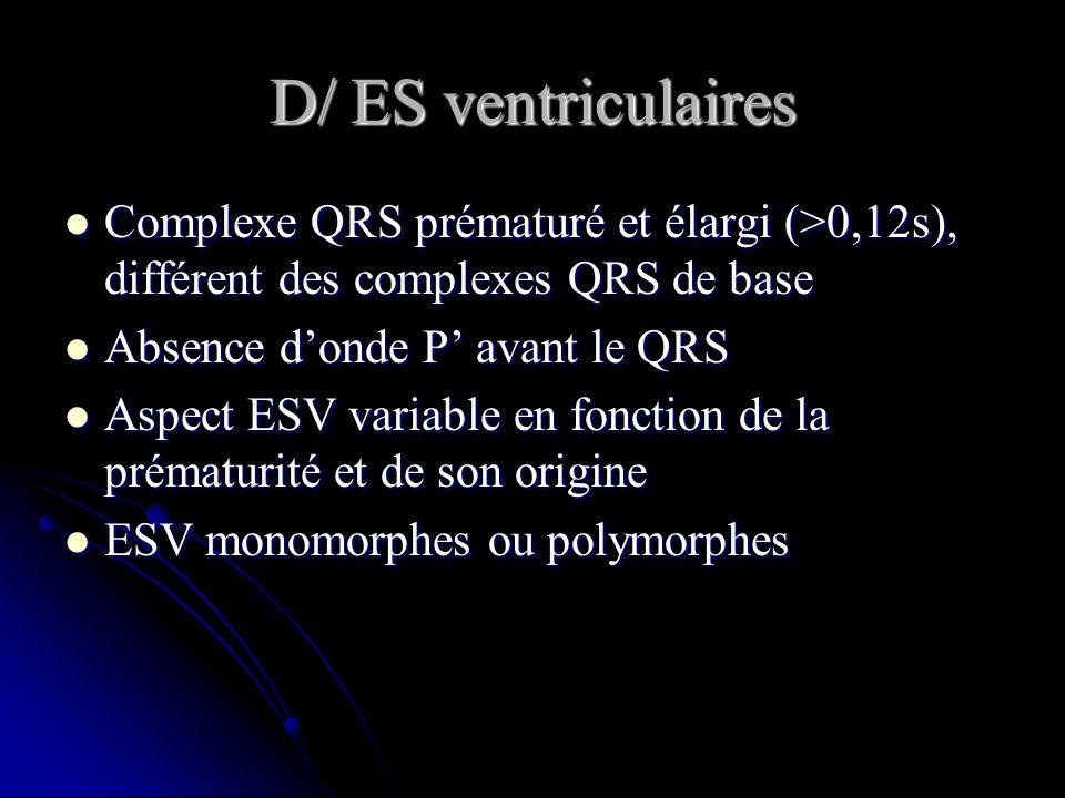 D/ ES ventriculaires Complexe QRS prématuré et élargi (>0,12s), différent des complexes QRS de base.