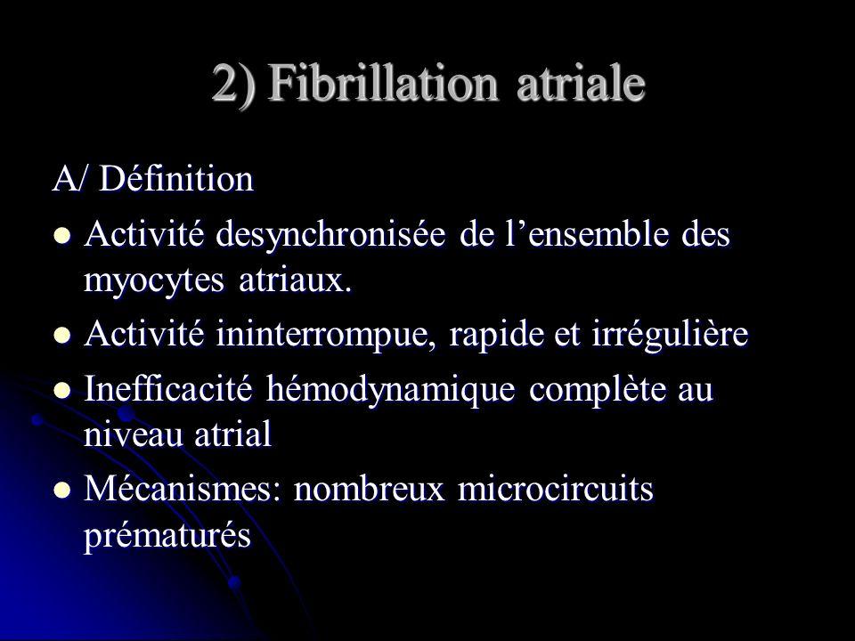 2) Fibrillation atriale