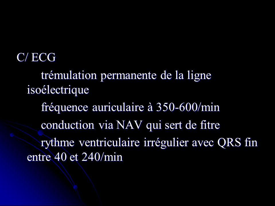 C/ ECG trémulation permanente de la ligne isoélectrique. fréquence auriculaire à 350-600/min. conduction via NAV qui sert de fitre.