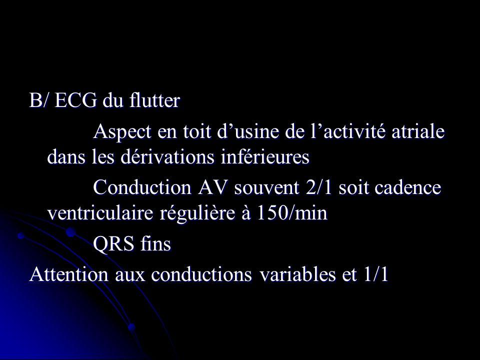 B/ ECG du flutter Aspect en toit d'usine de l'activité atriale dans les dérivations inférieures.