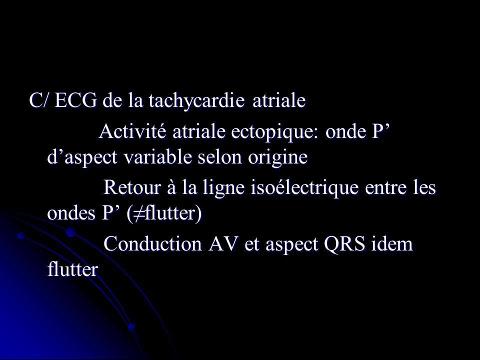 C/ ECG de la tachycardie atriale
