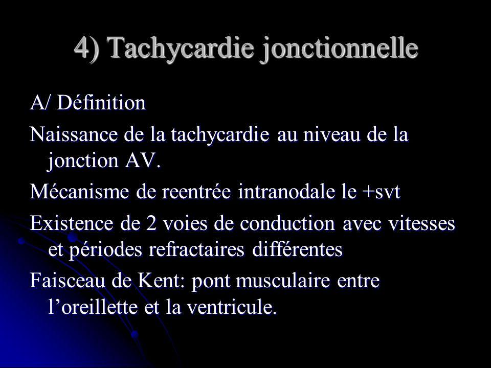 4) Tachycardie jonctionnelle