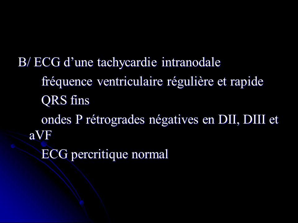 B/ ECG d'une tachycardie intranodale