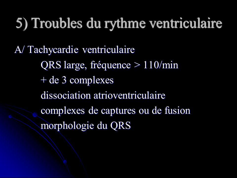 5) Troubles du rythme ventriculaire