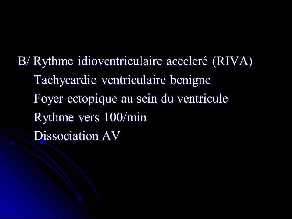 B/ Rythme idioventriculaire acceleré (RIVA)