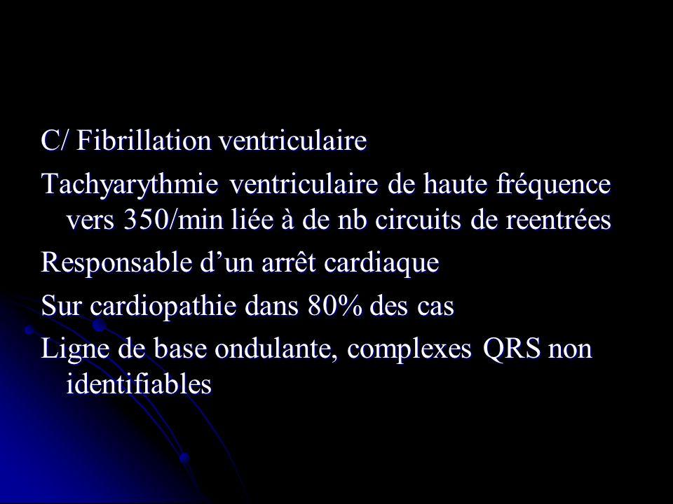 C/ Fibrillation ventriculaire