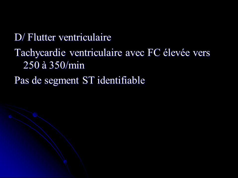 D/ Flutter ventriculaire