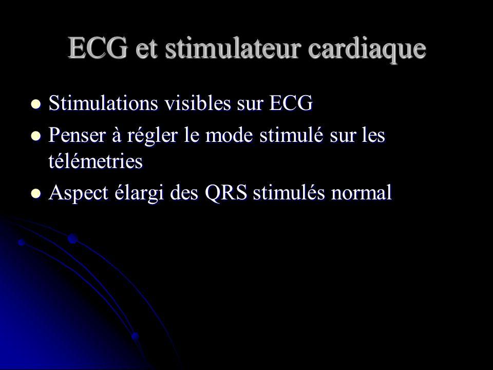 ECG et stimulateur cardiaque