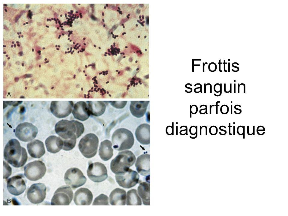 Frottis sanguin parfois diagnostique