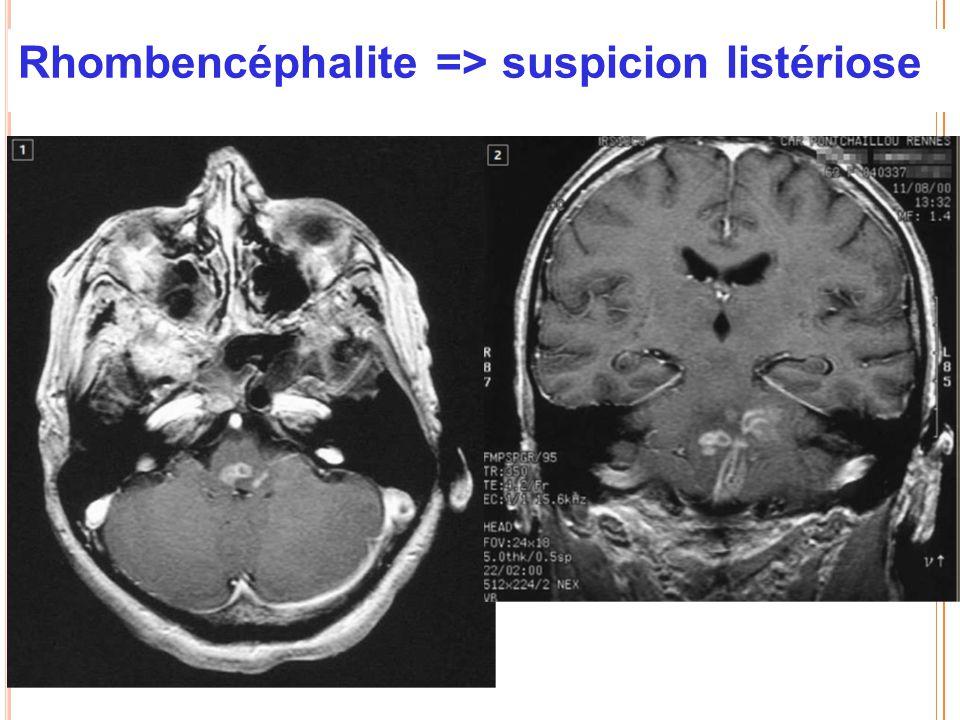 Rhombencéphalite => suspicion listériose