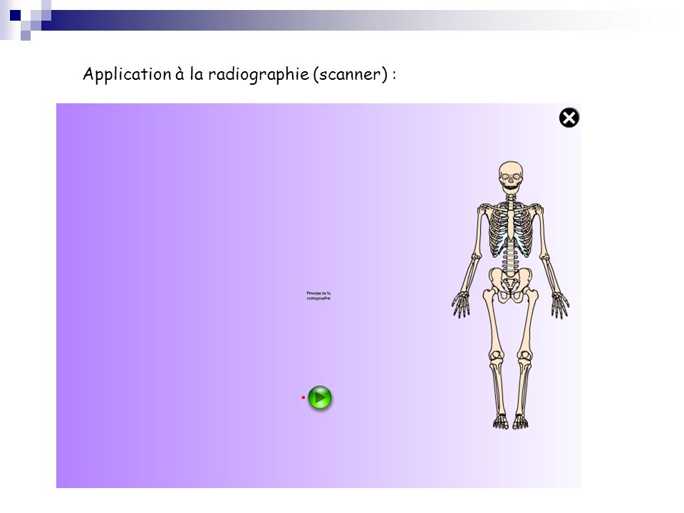 Application à la radiographie (scanner) :