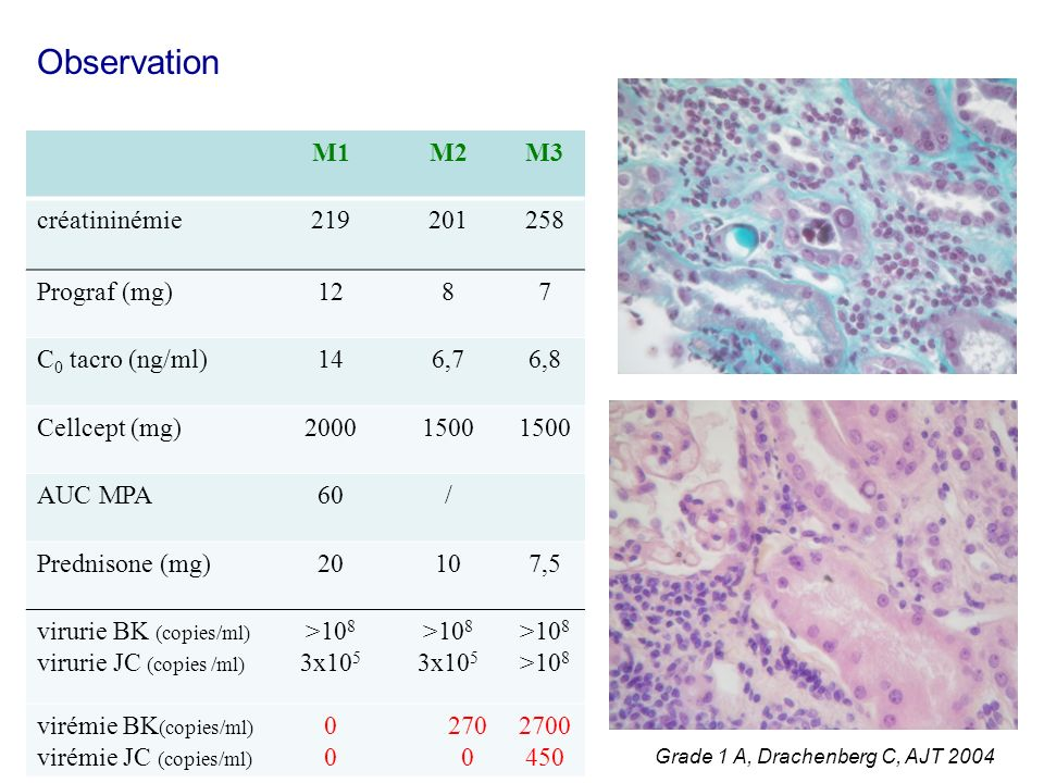 Observation M1 M2 M3 créatininémie 219 201 258 Prograf (mg) 12 8 7
