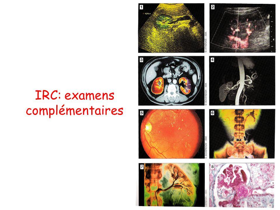 IRC: examens complémentaires