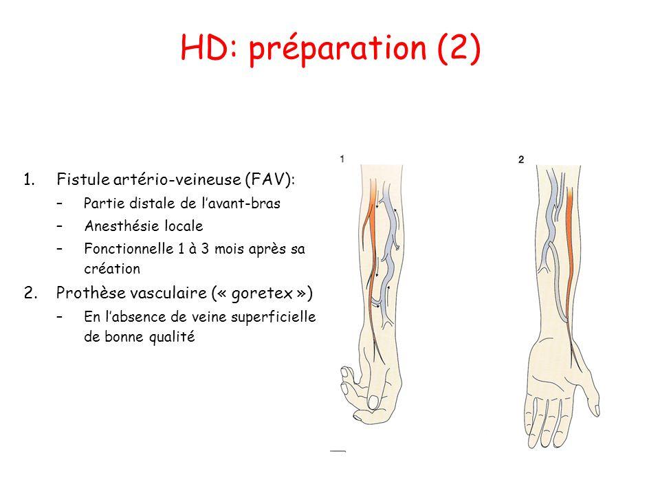 HD: préparation (2) Fistule artério-veineuse (FAV):